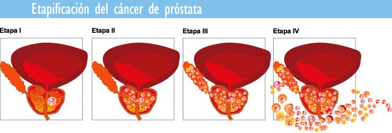 Cancer de prostata avanzado sintomas. Human papillomavirus ka